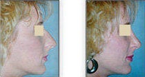 Rhinoplasty with nasal spine reduction