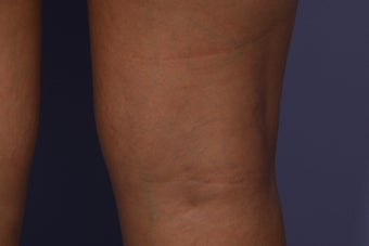 Sclerotherapy to Leg Veins after 308316