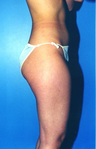 liposuction of thighs for women before 583572