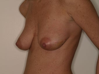Augmentation with mastopexy 331363