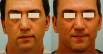 Revision/Corrective Rhinoplasty before 136561
