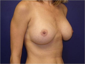 Breast Augmentation after 427306