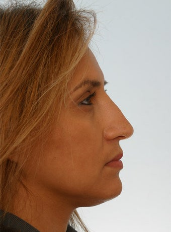 Non Surgical Rhinoplasty Juvederm Ultra Plus after 260324