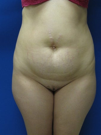 Abdominoplasty  before 343059
