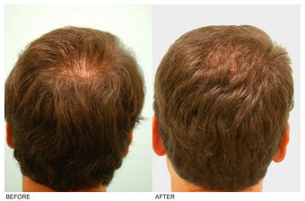 Crown (Vertex) Hair Transplant before 134767