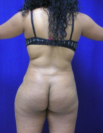 Buttock Augmentation - Fat Transfer before 315867