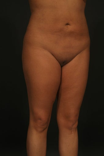 Liposuction 315578