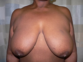 Breast reduction using the Ultimate Lift technique before 360399