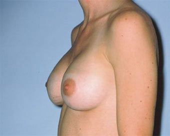 Breast Lift after 285336