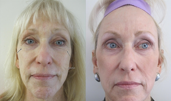 Fractional CO2 Laser Resurfacing before 387843