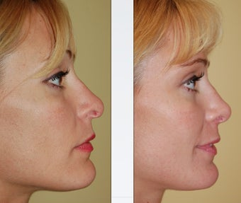 Revision Rhinoplasty before 346255