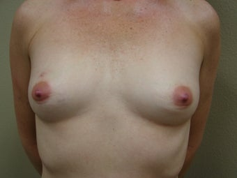 Breast Reconstruction before 346595