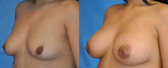 Flash Recovery Breast Augmentation TM before 253908