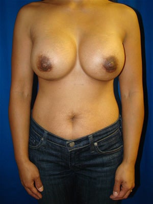 Breast Augmentation Surgery after 160991