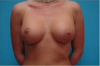 Breast Augmentation Silicone hi profile 375cc after 64686