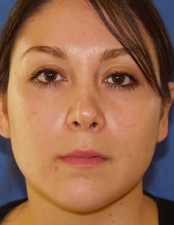 Revision Rhinoplasty before 410615