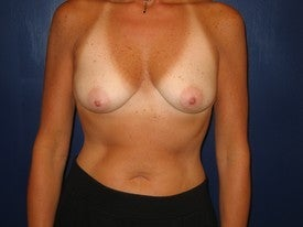 Breast Augmentation before 251460