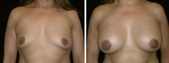 47 year old female, breast augmentation, San Francisco, California before 628329
