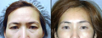 Endoscopic Brow Lift before 649398