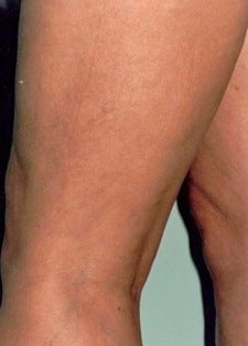 Sclerotherapy after 370422