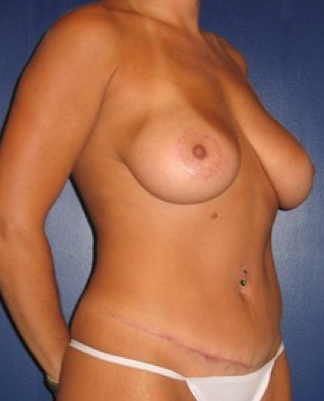 Tummy tuck after 306337