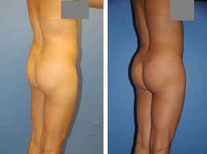 Buttocks Enhancement after 298395
