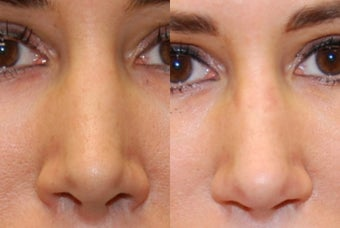 Non-Surgical Rhinoplasty with Silikon-1000 before 287447