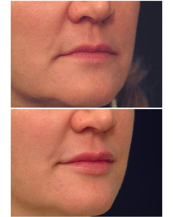 Injectable Filler before 301193