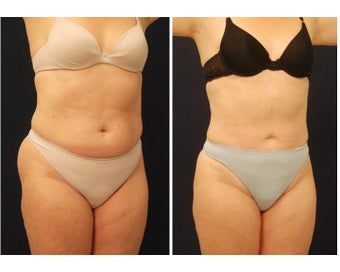Liposuction before 286731
