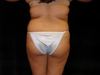 Buttocks Augmentation before 517511