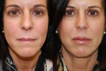 Lip Augmentation with Silikon-1000. 2 treatments. before 430182