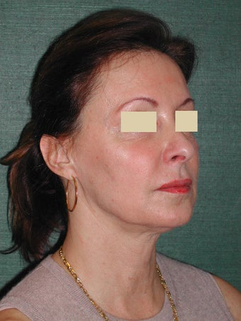 Female Facelift