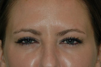 Botox injected in between the eyebrows and into the forehead after 577107