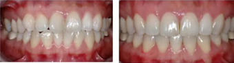 Orthodontic Braces - Crooked Teeth  before 299206