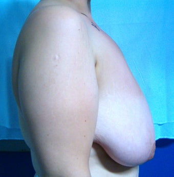 Breast Reduction before 616401