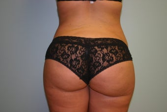 Buttock Augmentation (Fat Transfer) after 299603