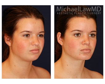 Chin Liposuction after 494435