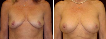45 year old female, breast augmentation, San Francisco, California before 628359