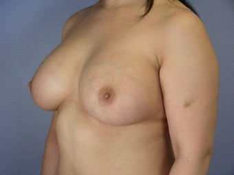 Breast Implants  after 305416