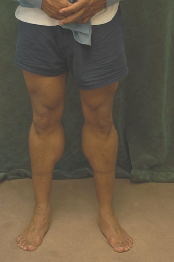 Men's Calf Augmentation  519058