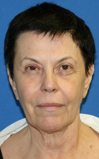 Facelift with Extended Necklift, Browlift, Fat Transfer, Upper Blepharoplasty, and Skin Pinch before 625450