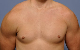 Pectoral Implants before 536031
