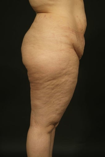 "Abdominoplasty and Liposuction ""Mommy Makeover"" before 132413"