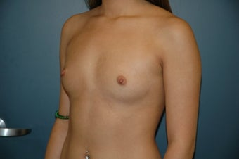 Breast Augmentation before 74992