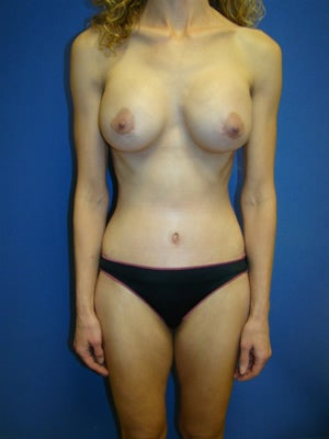 Mommy makeover - Tummy tuck and breast augmentation after 162001