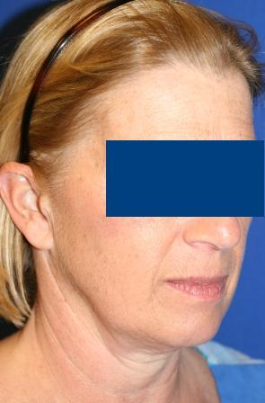 Facelift for Female, 56 before 106040