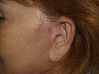 Scar and Earlobe Repair after 333694