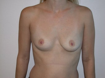 Breast Augmentation before 234602