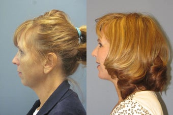 Lite Lift, Chin augmentation, liposuction of the neck after 523354