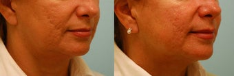 Acne Scarring Correction before 136791